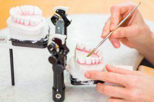 SAVEDENTAL- moderne Dentaltechniken für günstigen Zahnersatz