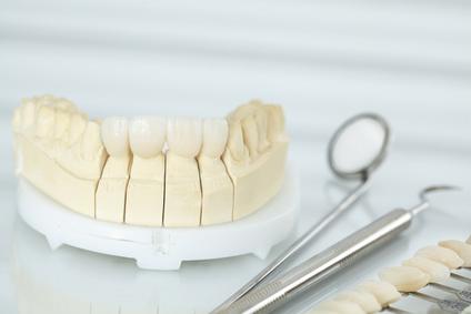 Günstiger Zahnersatz von SAVEDENTAL – durch Qualifikation und Kommunikation